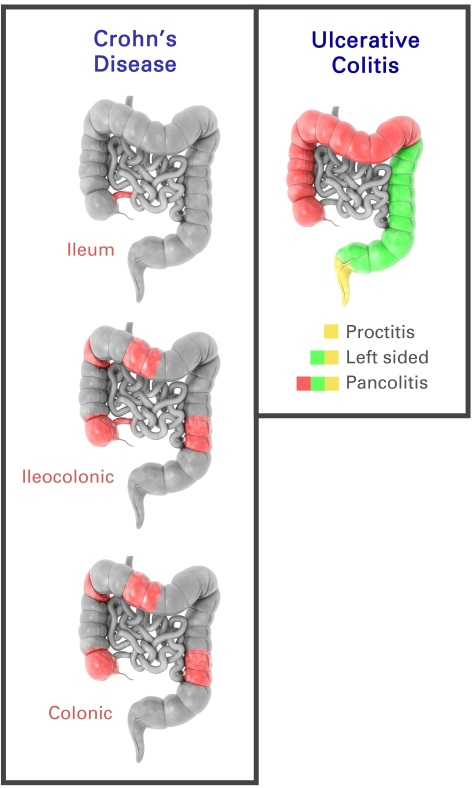 Complications of IBD in the digestive tract image
