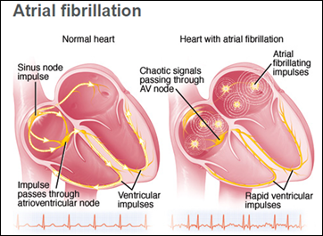 Atrial Fibrillation Program at UCLA Health