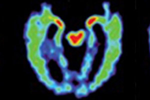 David Geffen School of Medicine at UCLA - PET scan of a brain with suspected CTE. More red and yellow indicates more abnormal brain proteins.