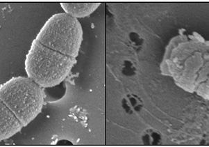 Courtesy of Dr. Wenyuan Shi - S. mutans bacteria, before and after treatment with C16G2.