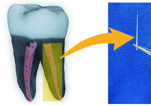 American Chemical Society/Dong-Keun Lee<br>A 3-D image of a tooth filled with nanodiamond-enhanced gutta percha, and an individual gutta percha point.