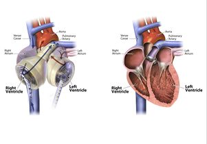 The SynCardia Total Artificial Heart, at left, and a human heart, at right