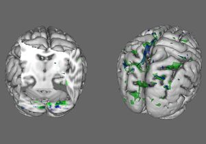 "Courtesy of Wei Li People with anorexia (green areas) and BDD (blue areas) show less activity than healthy people in the brain regions that process ""global"" information when viewing houses (left) and faces (right)."