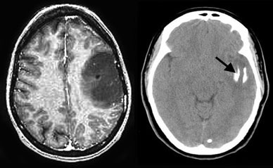 Oligodendroglioma - The MRI image shows a large tumor in the left frontal lobe. The CT scan (right) shows that the tumor is partially calcified (arrow).