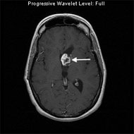 MRI image shows a juvenile pilocytic astrocytoma in the ventricle of the left frontal lobe