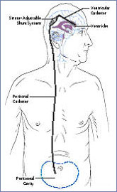 Adult hydrocephaly in normal pressure