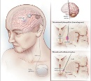 Neurosurgery article of Dr. Nader Pouratian deep brain stimulation for MS tremor