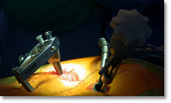 Minimally-invasive spine procedures
