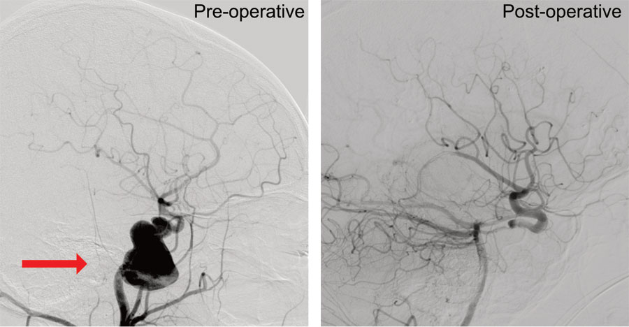 Arteriovenous Malformations (AVM) and Brain aneurysm