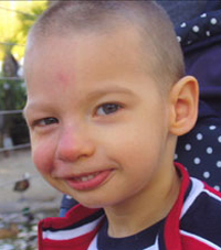 Aiden - Sturge-Weber Syndrome
