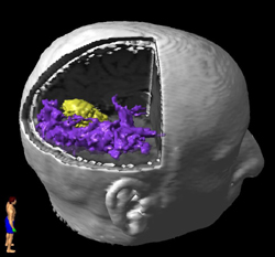 Diffusion Tensor Imaging - 3D view