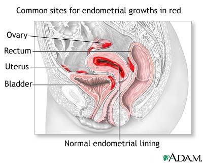 Signs of Endometriosis