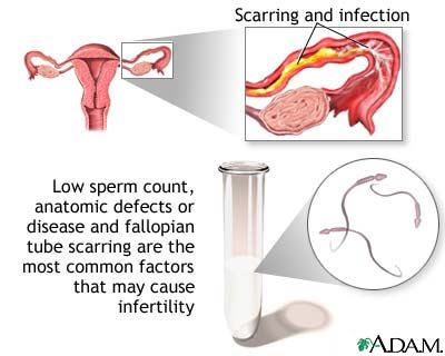 http://obgyn.ucla.edu/images/Infertility/Infertility_Causes.jpg
