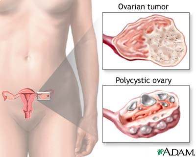 Hirsutism and Ovarian Tumor