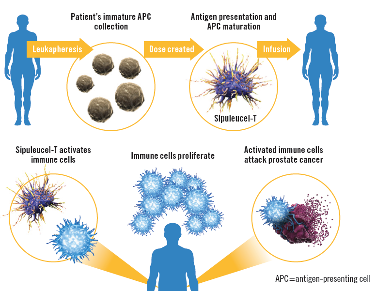Immunotherapy Treatment Can Increase Survival for Some
