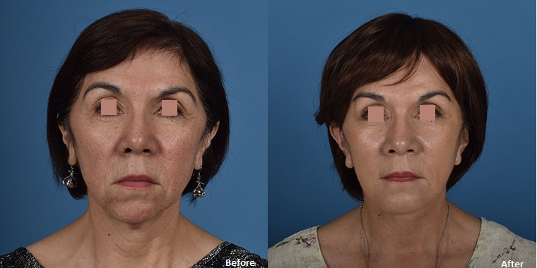 Facelift - The UCLA Division of Plastic & Reconstructive Surgery