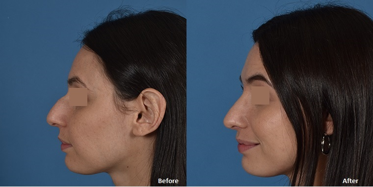 Rhinoplasty Before And After Rhinoplasty - The UCLA...