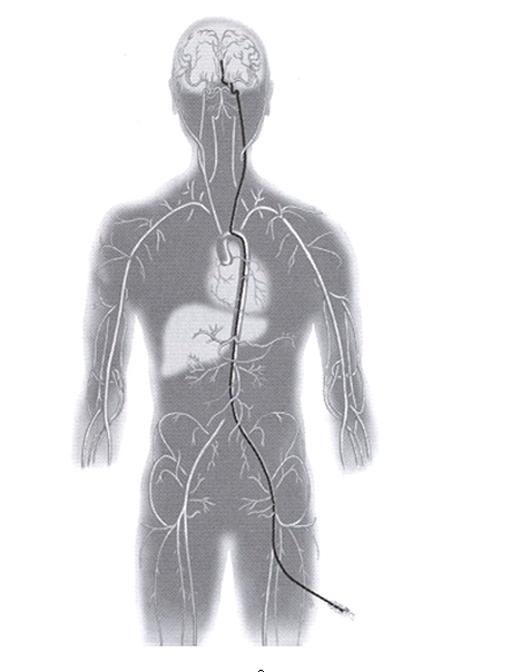 Embolization procedure is performed by introducing a small catheter through the artery.