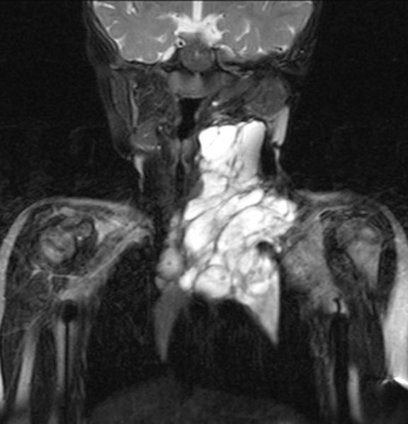 Coronal MRI STIR images demonstrating large left neck macrocystic lymphatic malformation