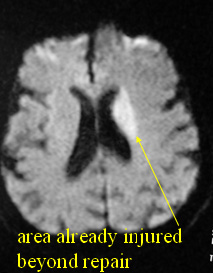 A stroke is an injury to the brain that causes a permanent loss of function.