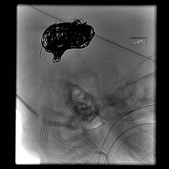 Endovascular embolization with coils