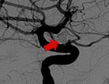 Fig. 2: a lateral view of the left internal carotid artery