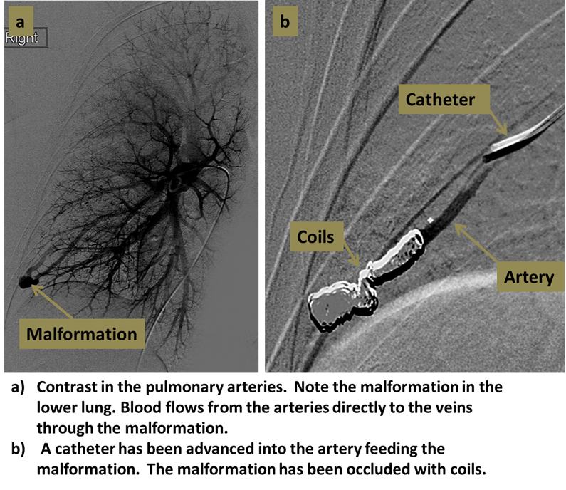 pulmonary-angiography-embolization-orig.png