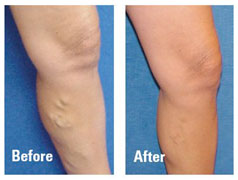 what is varicose vein surgery
