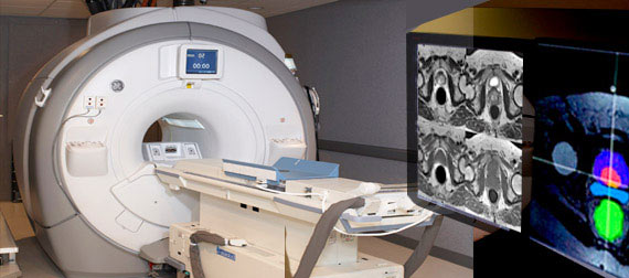 Imaging Services - Prostate MRI