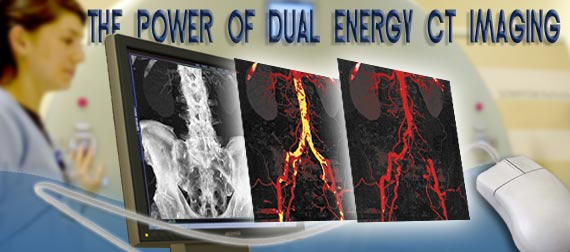 Duel energy CT Angiography enhances diagnostic capabilities