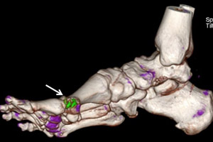 Dual energy CT for gout. Foot. UCLA Gout Program, Division of Rheumatology.