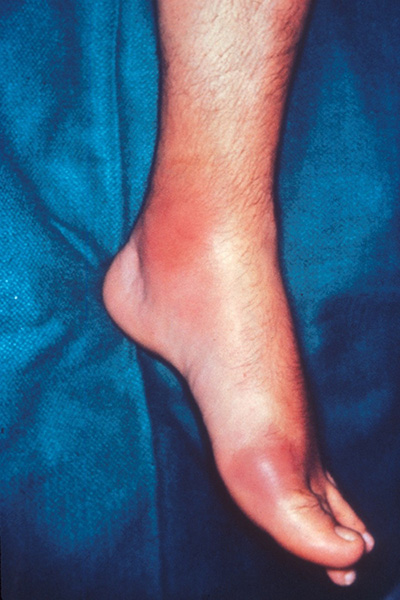 UCLA Division of Rheumatology Gout Program. (foot with gout)