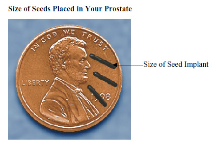 Size of seeds placed in your prostate