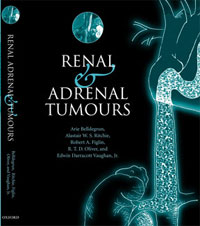 Renal and Adrenal Tumors Biology and Management