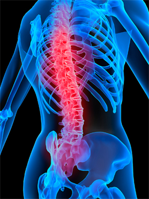 spinal cord injury fertility male fertility after a spinal cord