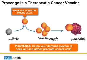Provenge Vaccine Illustration