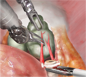 Nerve Sparing Technique Robotic Prostatectomy Robotically Assisted Prostate Surgery Ucla