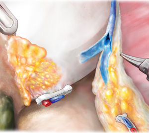interfascial nerve-sparing for higher risk, higher volume tumors